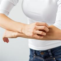 Anti-itching creams